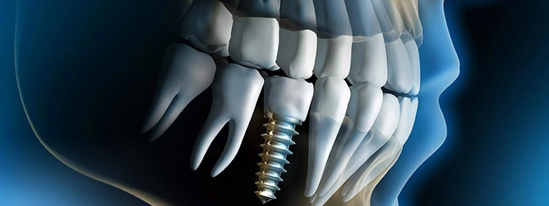 Implantologia dentystyczna
